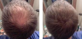 загуститель для волос fully в кирове